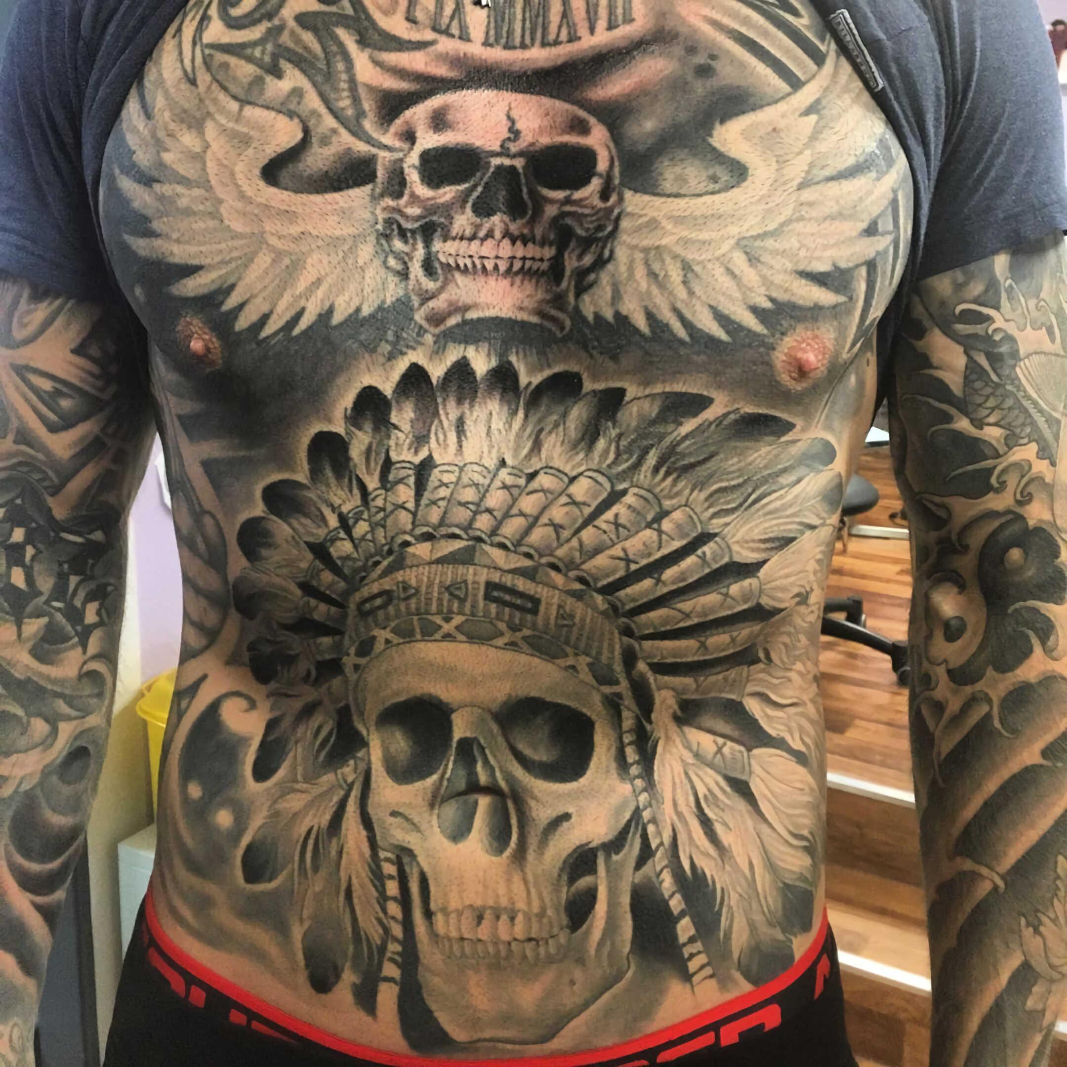 удаление татуировки на животе