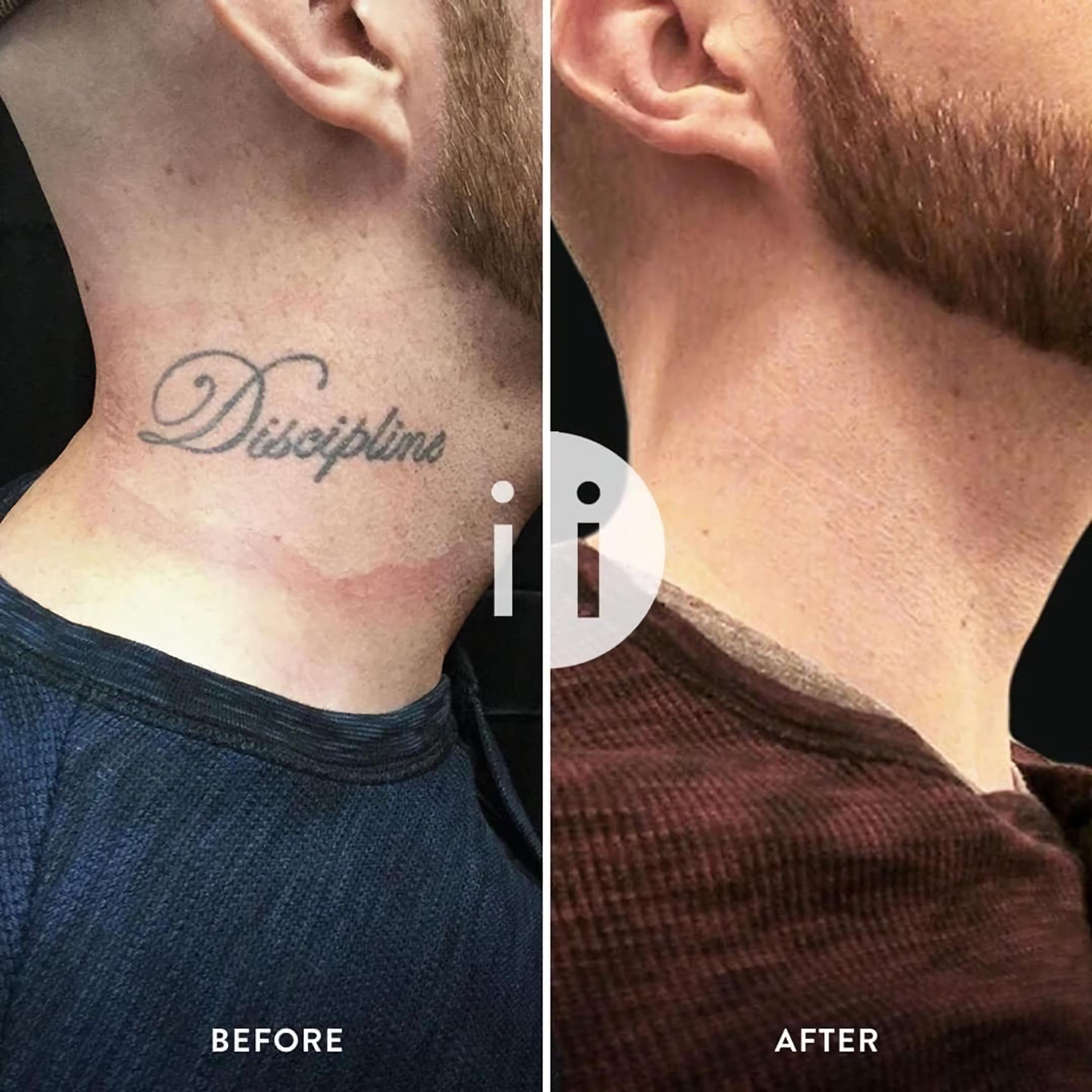 удаление татуировки на шее